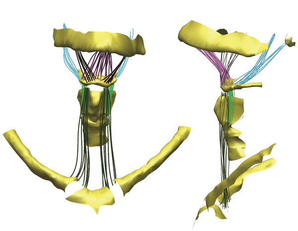 A 3D rendering of a human hyoid bone